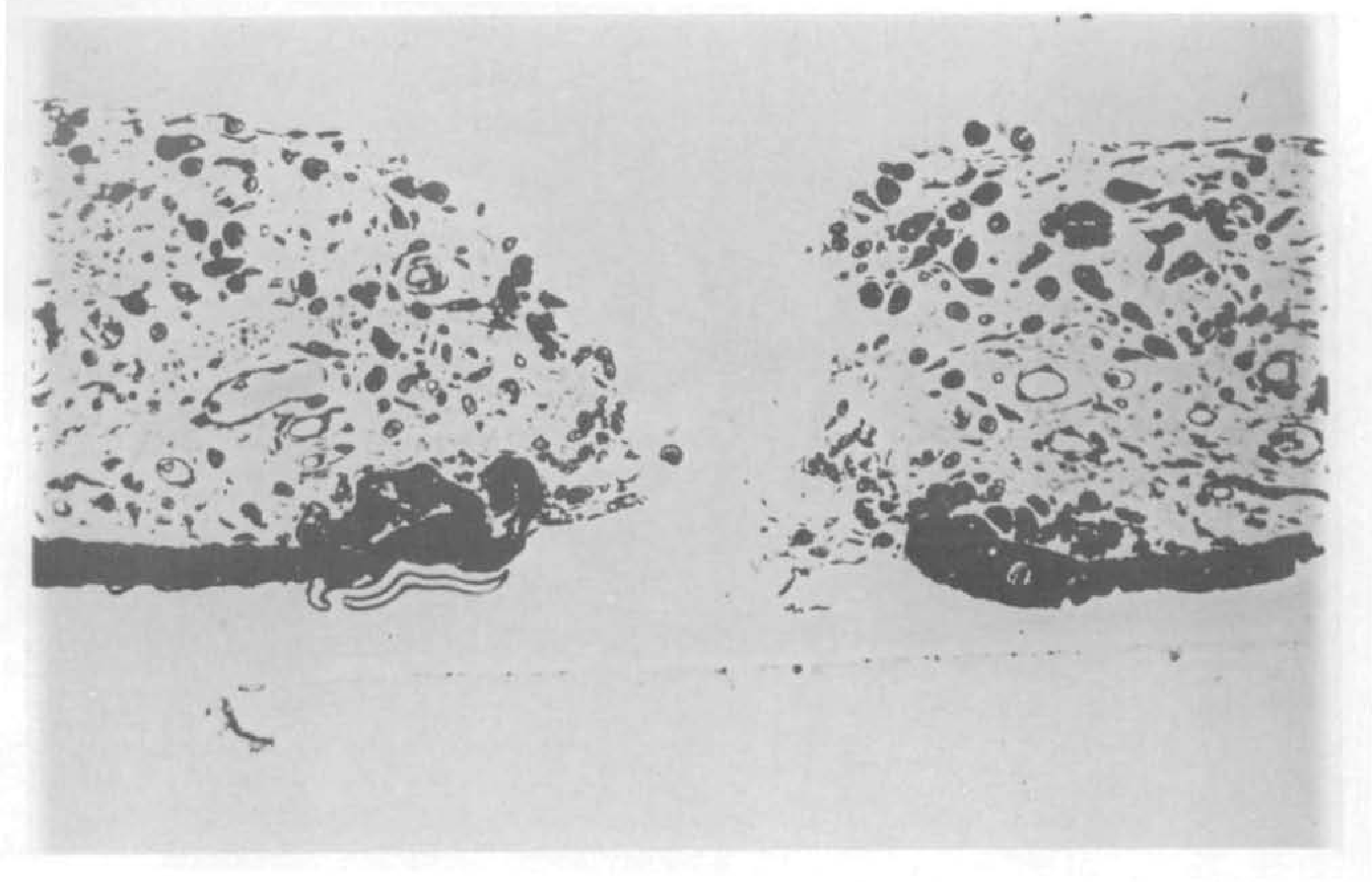Fig. 6. Nd:YAG iridotomy 9 days following treatment with a 20 mJ single pulse. There is thickening of the pigment epithelium at the margins and pigment laden cells in the stroma bordering the iridotomy (phase contrast microscopy, X200).