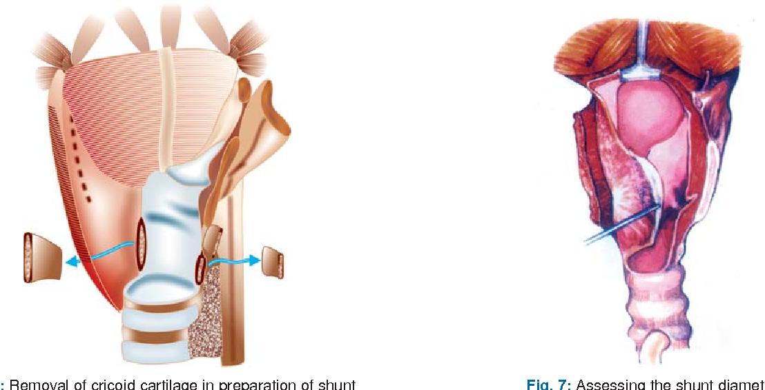 Erfreut Anatomie Und Physiologie Färbung Arbeitsmappe Kapitel 1 ...