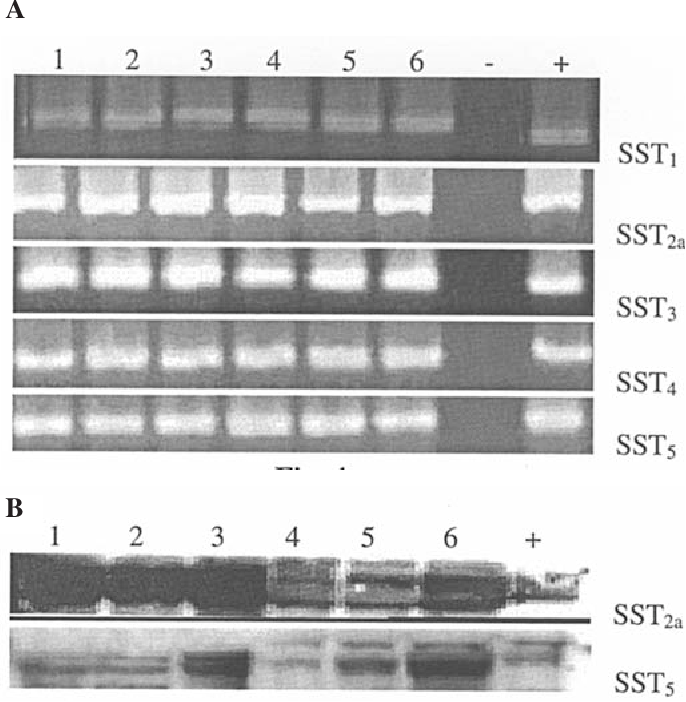 Figure 4. (A) Expression of mRNA for somatostatin receptor subtypes 1-5 in human malignant melanomas MRI-H255 and MRI-H187 as revealed by RT-PCR. PCR products were separated on a 1.8% agarose gel and stained with ethidium bromide. mRNA expression for all five receptor subtypes was found with the expected size of 217 bp for sst1, 1104 for sst2a, 183 for sst3, 278 for sst4 and 222 for sst5, in both human malignant melanoma tumor lines. Lanes 1-3, MRI-H255; lanes 4-6, MRI-H187; -, negative control; +, positive control (PC-3 human prostate carcinoma). (B) Expression of sst2a and sst5 protein as revealed by Western blot analysis. The receptor proteins were at the expected sizes of 43 kd (sst2a) and 43 kd (sst5) kd. Lanes 1-3 are MRIH255 tumors; lanes 4-6, MRI-H187 tumors; +, positive control (PC3 human prostate cancer).