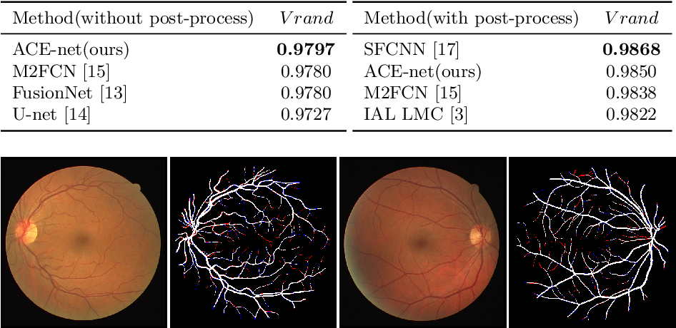Figure 4 for ACE-Net: Biomedical Image Segmentation with Augmented Contracting and Expansive Paths