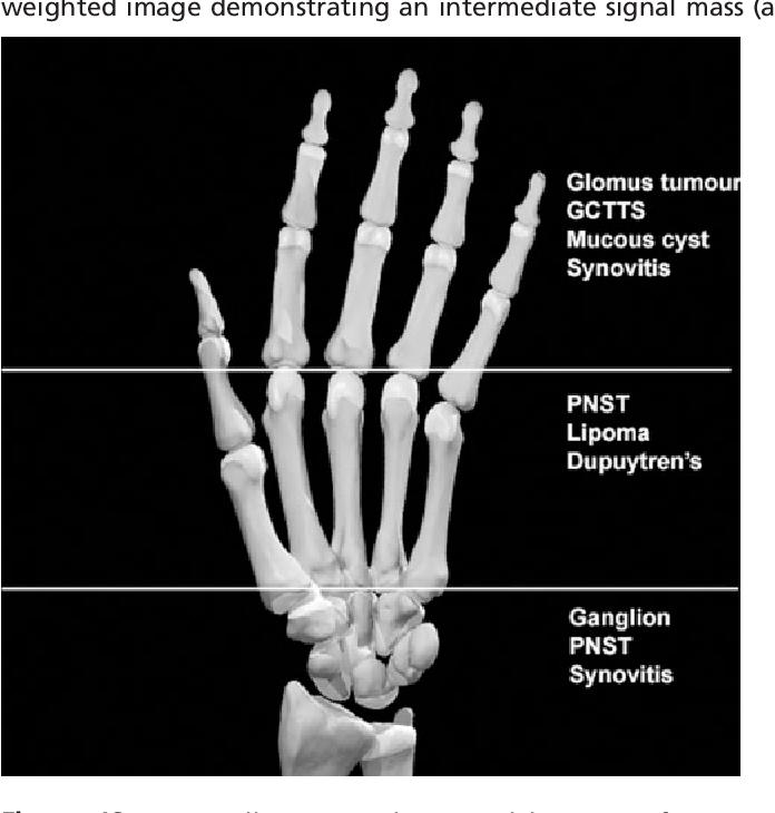 MRI of soft tissue masses of the hand and wrist  - Semantic Scholar