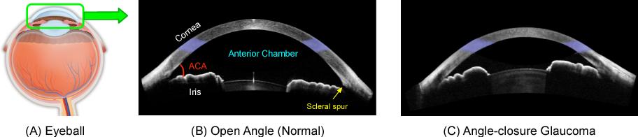 Figure 1 for Multi-Context Deep Network for Angle-Closure Glaucoma Screening in Anterior Segment OCT