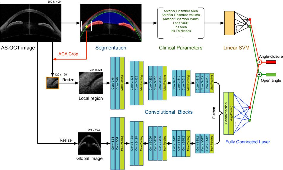 Figure 3 for Multi-Context Deep Network for Angle-Closure Glaucoma Screening in Anterior Segment OCT