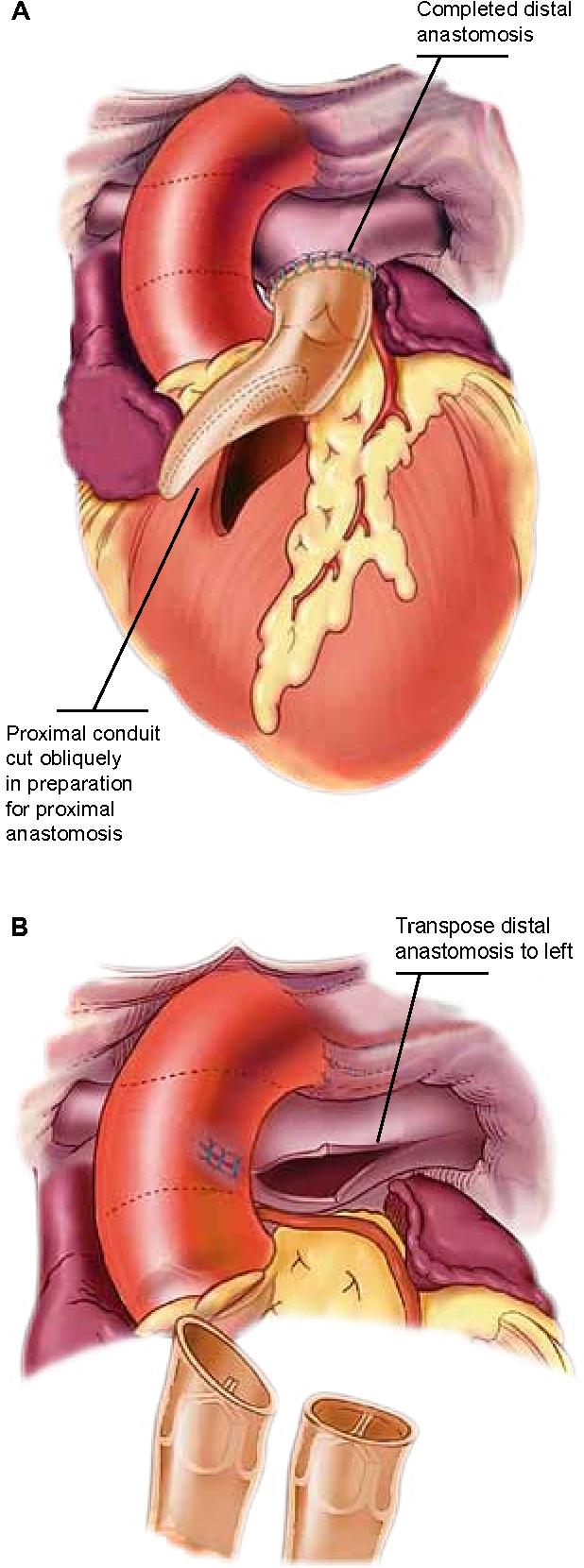 The contegra® valved heterograft conduit for right ventricular ...