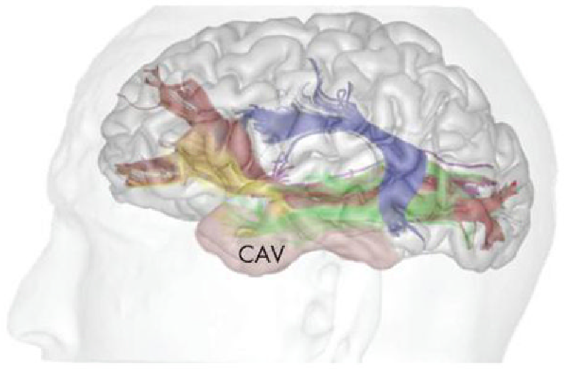 Stochastic Tractography Study Of Inferior Frontal Gyrus Anatomical