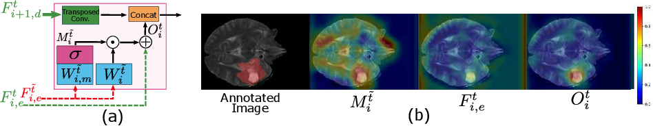 Figure 3 for Unified Attentional Generative Adversarial Network for Brain Tumor Segmentation From Multimodal Unpaired Images