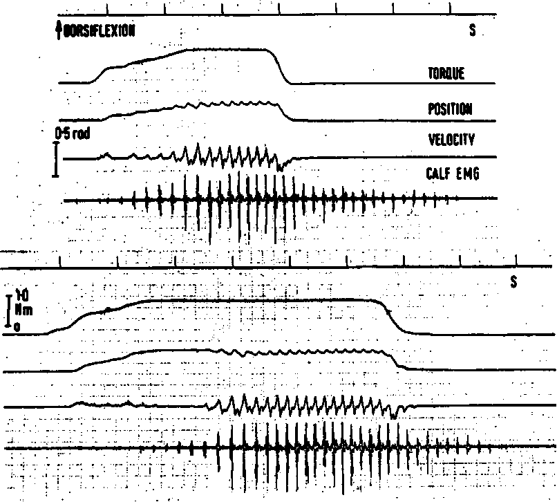 Figure 2 from Clonus: beats provoked by the application of a