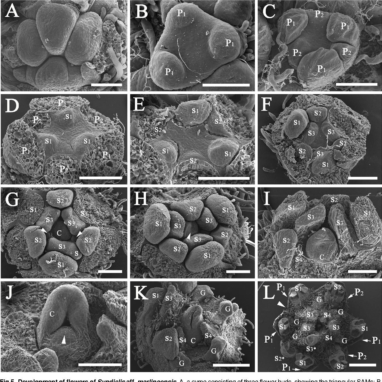 Fig 5. Development of flowers of Syndiclis aff. marlipoensis. A, a cyme consisting of three flower buds, showing the triangular SAMs; B, three tepal primordia (P1) initiated at different rates; C, three inner tepal primordia (P2) initiated at different rates; D, three primordia of the first androecial whorl (S1) initiated; E, three primordia of the second androecial whorl (S2) initiated; F, three primordia of the third androecial whorl (S3) initiated; G, the carpel primordium initiated, arrow pointing to the staminodial primordium of the fourth androecial whorl (S4), a stamen of the third androecial whorl fused to a supernumerary stamen of the second androecial whorl; H–I, the lateral side of the carpel with concavity; J, the carpel flanks approximating one another, arrow indicating the ovular protuberance; K, fusion of the carpel flanks resulting in the enclosure of the ovule; L, a flower bearing seven tepals and seven fertile stamens, S2* and S3* representing two one-locular stamens, arrow marking the missing orthostichy leading to the loss of a tepal of the inner tepal whorl (P2), a stamen of the second androecial whorl (S2), and a staminode of the fourth androecial whorl (S4). Scale bars: A–J: bar = 100 μm; K: bar = 300 μm; L = 1 mm. Abbreviations. C, carpel; G, gland; P1, the outer whorl of tepals; P2, the inner whorl of tepals; S, a supernumerary staminal organ; S1, the first/outermost whorl of stamens; S2, the second whorl of stamens; S3, the third androecial whorl including either fertile stamens or staminodes; S4, the fourth androecial whorl including staminodes.