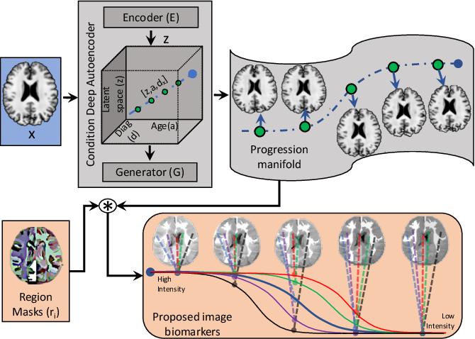 Figure 3 for Degenerative Adversarial NeuroImage Nets: Generating Images that Mimic Disease Progression