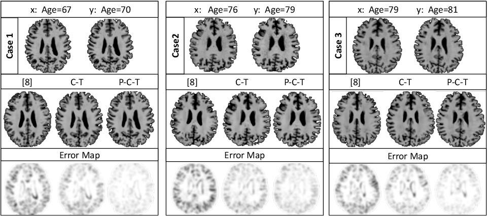 Figure 4 for Degenerative Adversarial NeuroImage Nets: Generating Images that Mimic Disease Progression