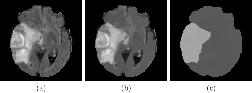 Figure 1 for Robustness of Brain Tumor Segmentation