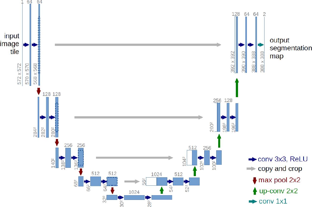 Figure 3 for Robustness of Brain Tumor Segmentation