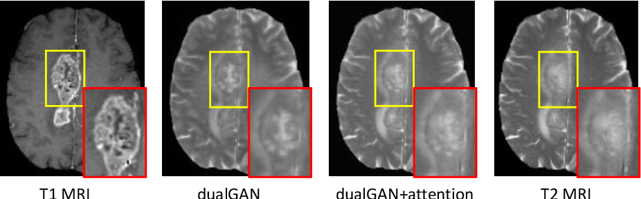 Figure 4 for Dual Adversarial Learning with Attention Mechanism for Fine-grained Medical Image Synthesis