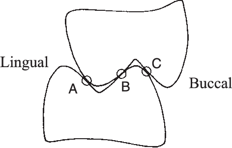 Fig. 1. Classification of locations of posterior tooth contact. Locations A and C correspond to contact in laterotrusion and location B to mediotrusion [after Seligman et al. (83)].