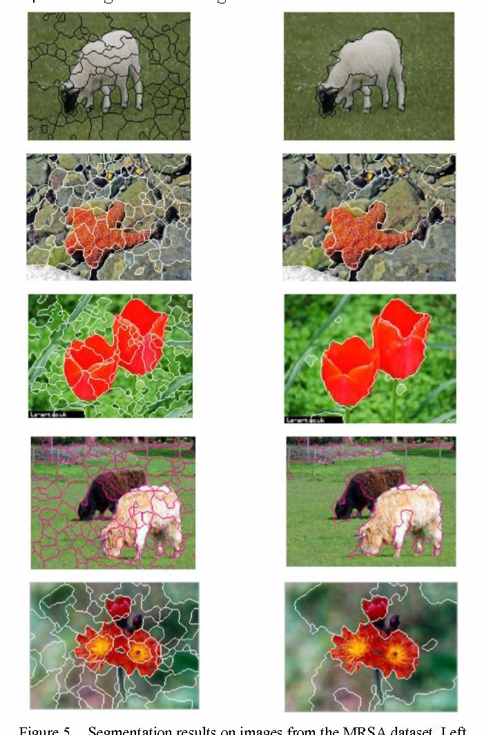 Figure 5. Segmentation results on images from the MRSA dataset. Left column: initial segmentation. Right column: final segmentation.