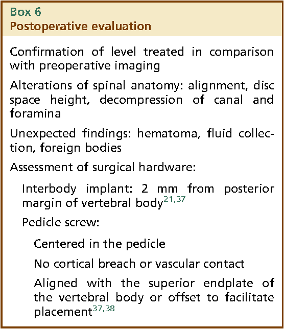 Figure 8 from Imaging of lumbar spine fusion. - Semantic Scholar