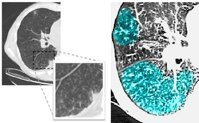 Figure 1 for Learning Shape and Texture Characteristics of CT Tree-in-Bud Opacities for CAD Systems