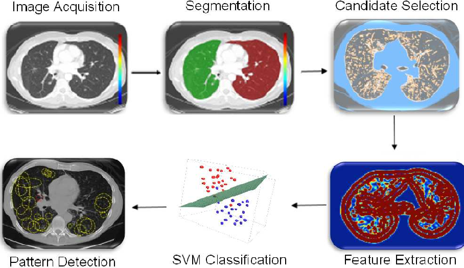 Figure 3 for Learning Shape and Texture Characteristics of CT Tree-in-Bud Opacities for CAD Systems