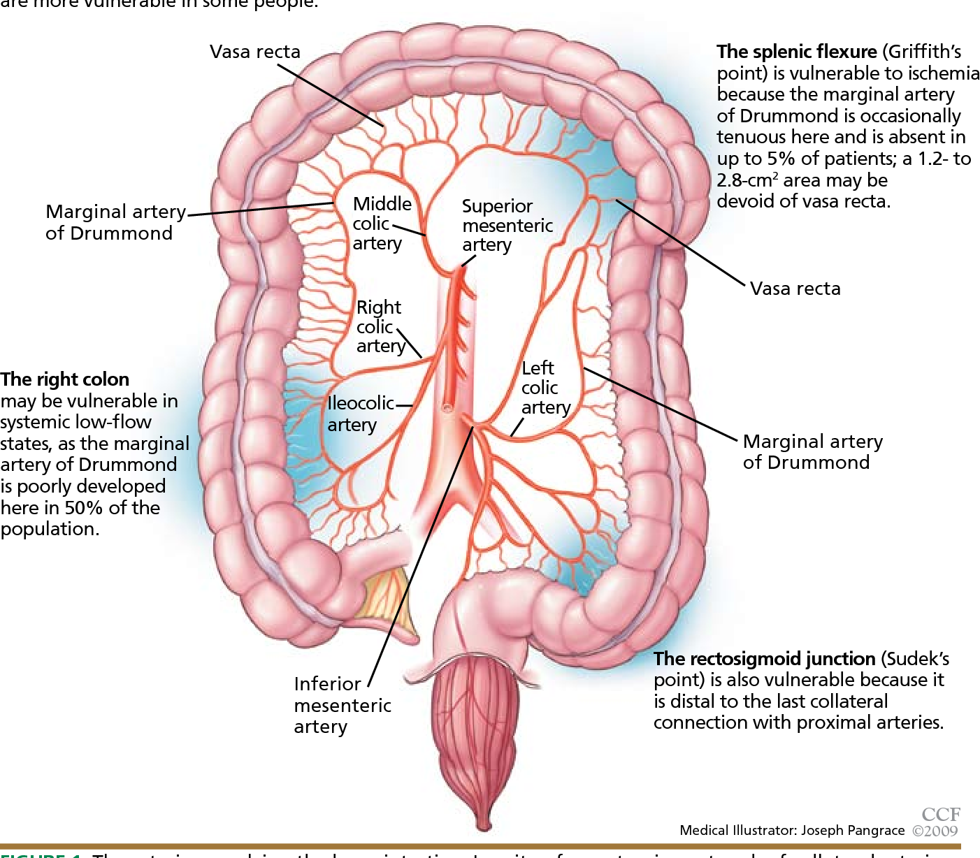 Figure 1 From Clinical Approach To Colonic Ischemia Semantic Scholar