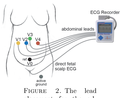 Figure 3 for Efficient fetal-maternal ECG signal separation from two channel maternal abdominal ECG via diffusion-based channel selection