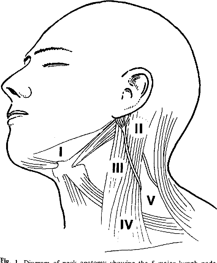 Figure 1 From Neck Dissection For Cutaneous Malignant Melanoma
