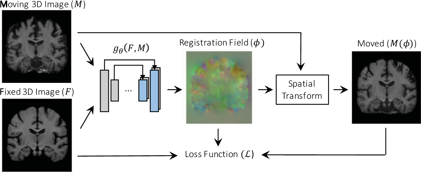 Figure 3 for An Unsupervised Learning Model for Deformable Medical Image Registration