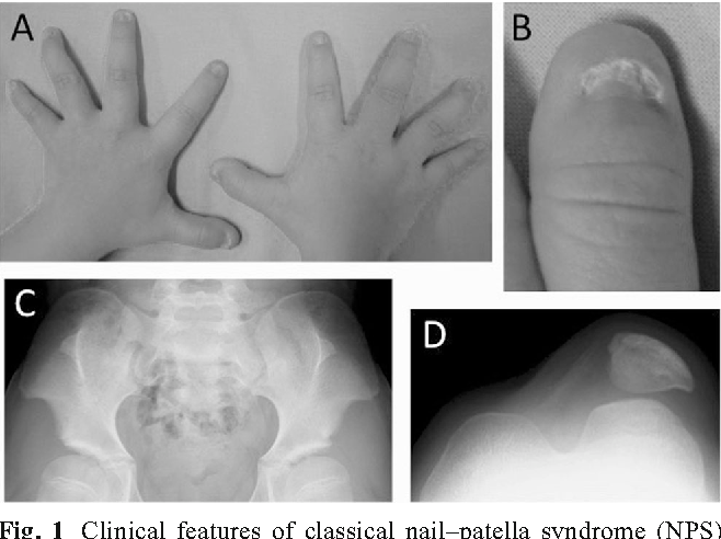 Spectrum of LMX1B mutations: from nail–patella syndrome to isolated ...