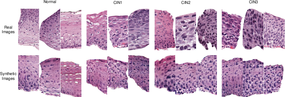 Figure 3 for Synthetic Augmentation and Feature-based Filtering for Improved Cervical Histopathology Image Classification