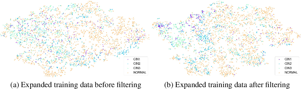 Figure 4 for Synthetic Augmentation and Feature-based Filtering for Improved Cervical Histopathology Image Classification