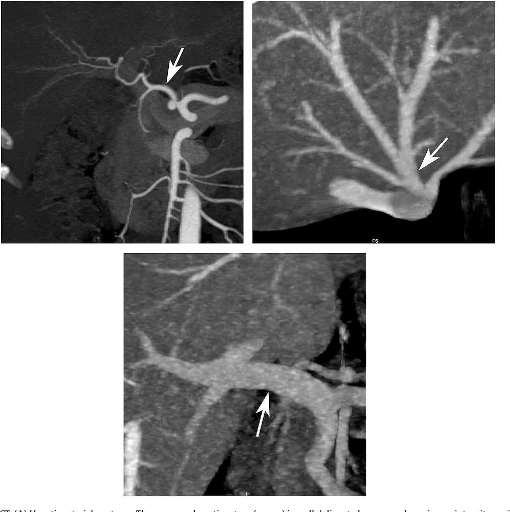 Figure 2 from Updates in hepatic oncology imaging. - Semantic Scholar