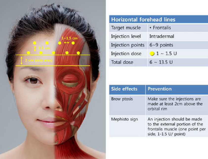 Botox facial injection sites chin are