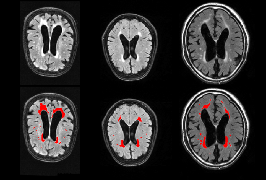 Figure 4 for DeepMRSeg: A convolutional deep neural network for anatomy and abnormality segmentation on MR images