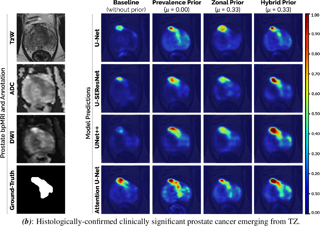 Figure 3 for Encoding Clinical Priori in 3D Convolutional Neural Networks for Prostate Cancer Detection in bpMRI