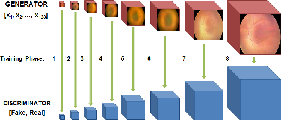 Figure 1 for High-resolution medical image synthesis using progressively grown generative adversarial networks