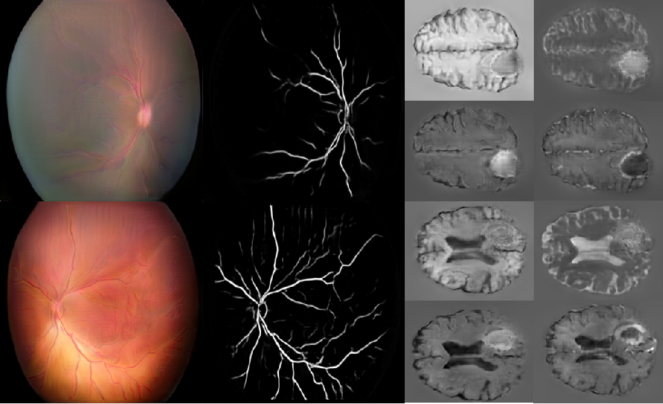 Figure 2 for High-resolution medical image synthesis using progressively grown generative adversarial networks