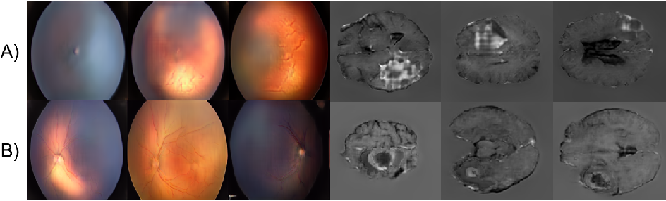 Figure 3 for High-resolution medical image synthesis using progressively grown generative adversarial networks