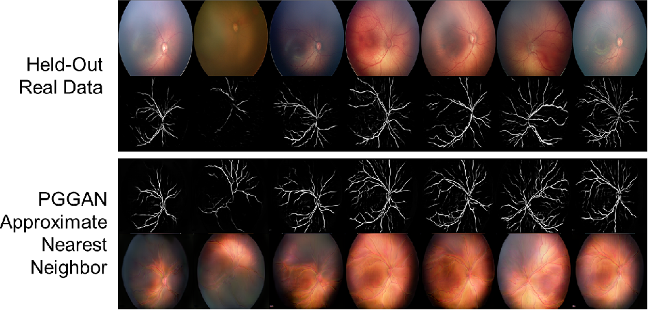 Figure 4 for High-resolution medical image synthesis using progressively grown generative adversarial networks