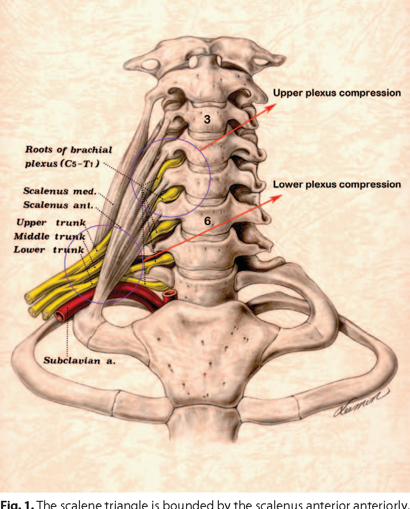 Thoracic Outlet Syndrome: Past and Present—88 Surgeries in 30 Years ...