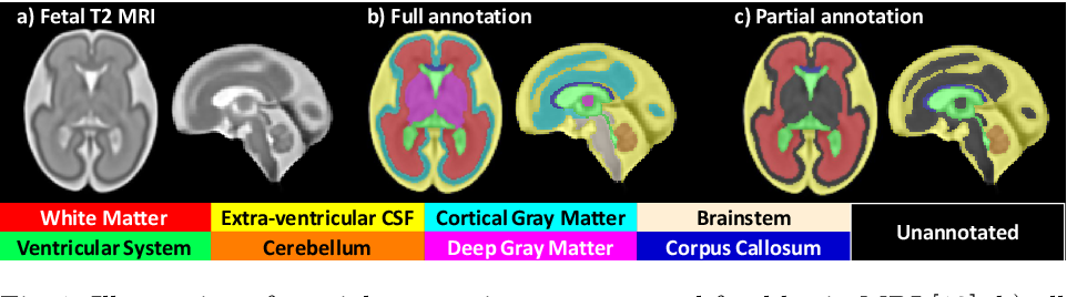 Figure 1 for Label-set Loss Functions for Partial Supervision: Application to Fetal Brain 3D MRI Parcellation