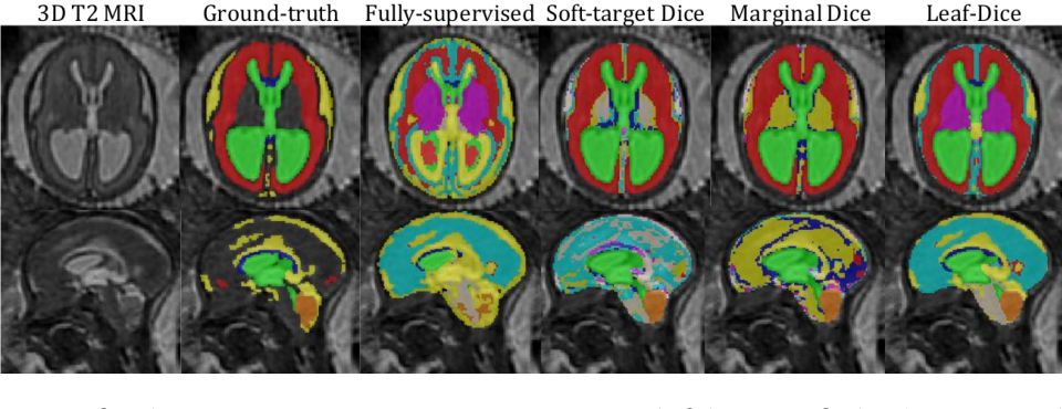 Figure 3 for Label-set Loss Functions for Partial Supervision: Application to Fetal Brain 3D MRI Parcellation