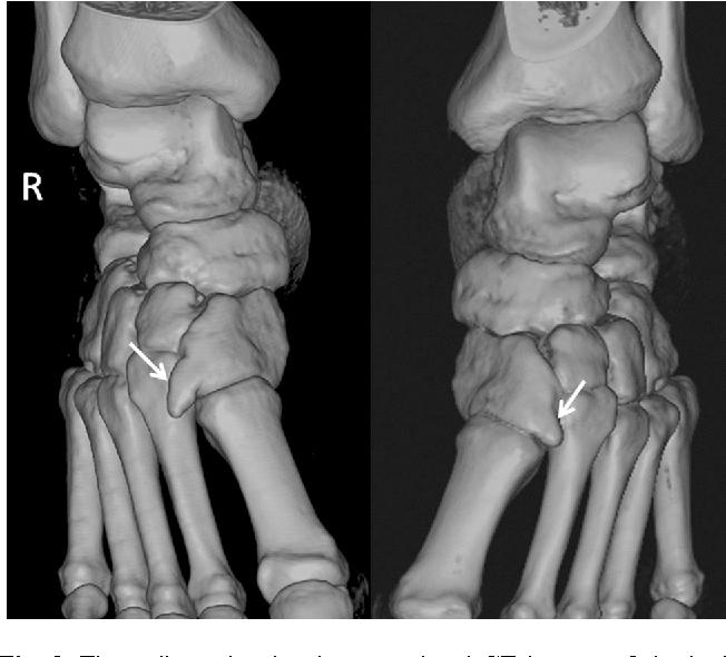Bilateral Fused Os Intermetatarseum Presenting As Dorsal Foot Pain