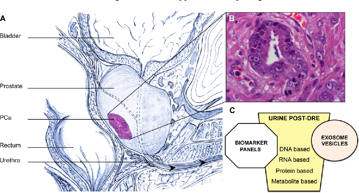 Figure 1 From The Present And Future Of Prostate Cancer Urine