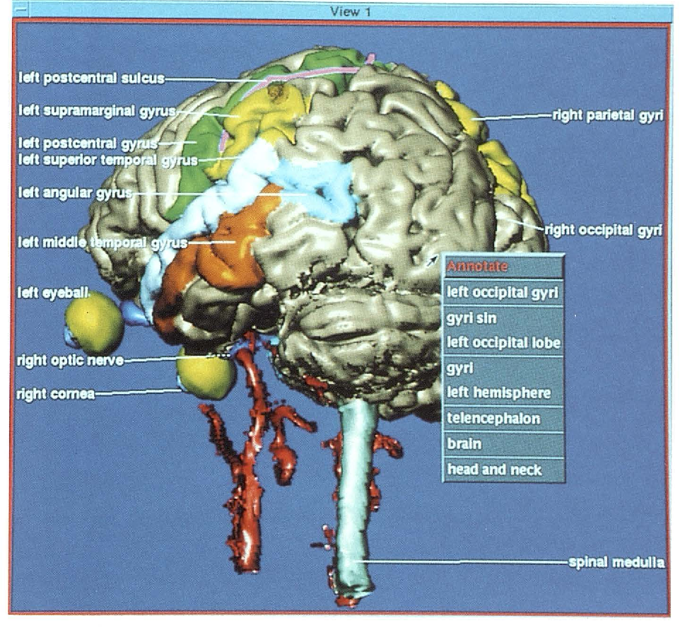 A computerized three-dimensional atlas of the human skull and brain ...