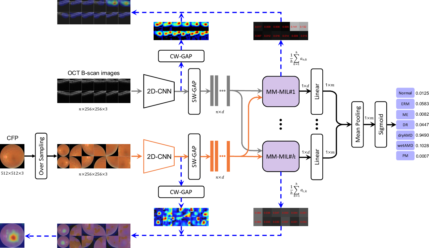 Figure 2 for Multi-Modal Multi-Instance Learning for Retinal Disease Recognition