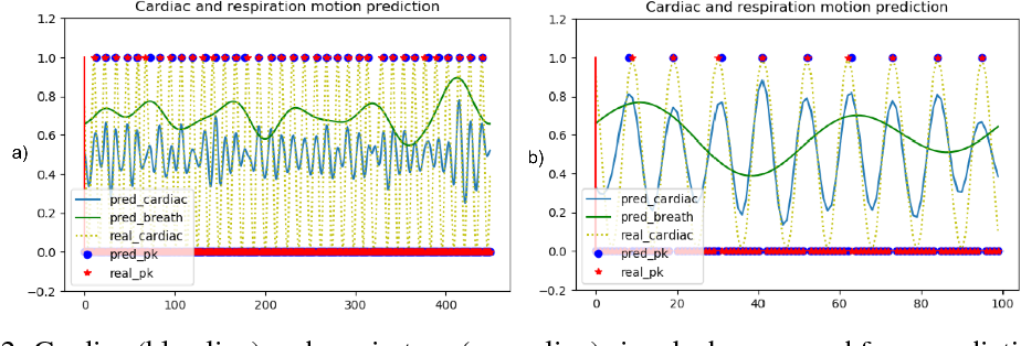 Figure 3 for Repetitive Motion Estimation Network: Recover cardiac and respiratory signal from thoracic imaging