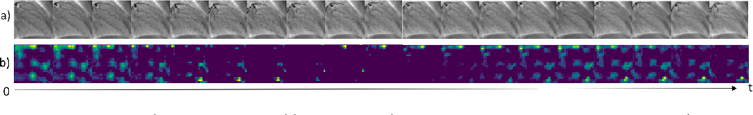 Figure 4 for Repetitive Motion Estimation Network: Recover cardiac and respiratory signal from thoracic imaging