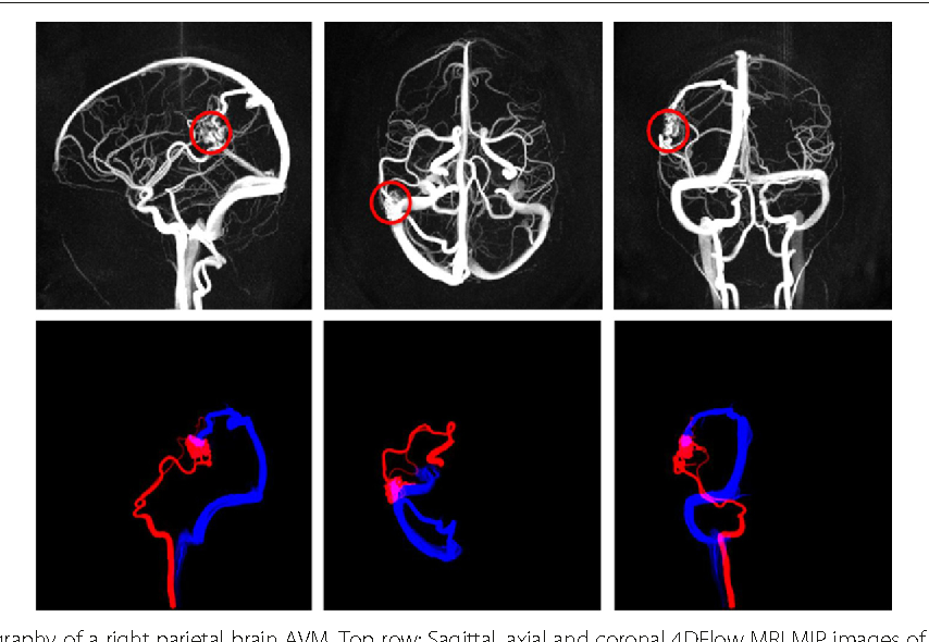 Figure 7 from Neurovascular 4 DFlow MRI ( Phase Contrast MRA ...