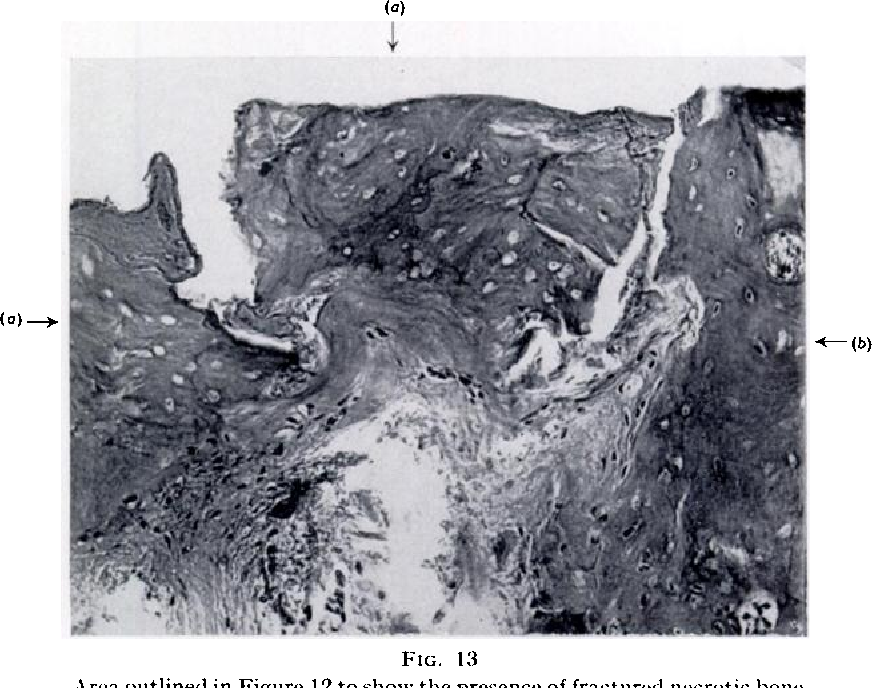 Figure 13 from The cysts of osteoarthritis of the hip