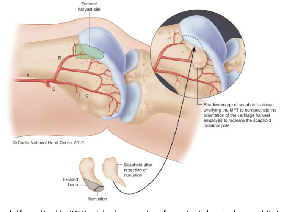 Osteochondral flaps from the distal femur: expanding applications ...