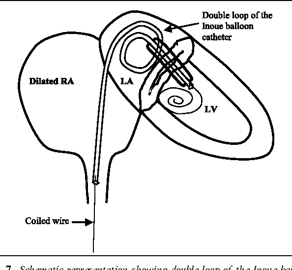Figure 7 From Prehospital Thrombolysis A Reappraisal